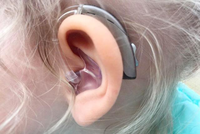 Компенсация за слуховой аппарат глухим в 2020 году