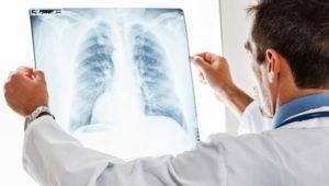 Какие предоставляются льготы больного туберкулезом в 2020 году