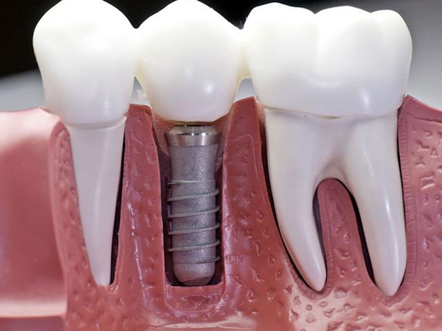 Как получить налоговый вычет за лечение зубов в 2020 году